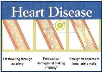 สาเหตุการเกิดโรคหัวใจ